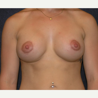 18-24 year old woman treated with Breast Implants after 3455452