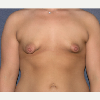 18-24 year old woman treated with Breast Implants before 3455452