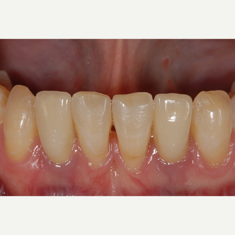 35-44 year old woman treated with Dental Implants. after 3560255