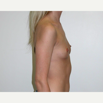 25-34 year old woman treated with Breast Augmentation before 3378083