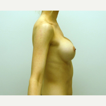 25-34 year old woman treated with Breast Augmentation after 3378083