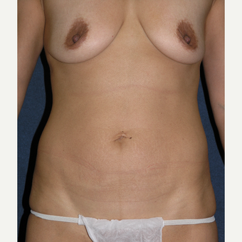 35-44 year old woman treated with Breast Augmentation before 3536566