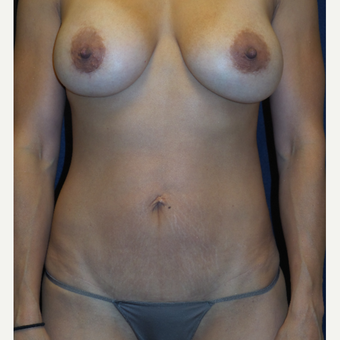 35-44 year old woman treated with Breast Augmentation after 3536566