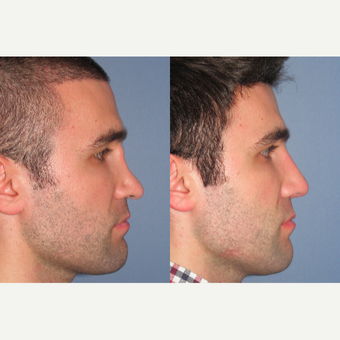 35-44 year old man treated with Revision Rhinoplasty before 3522799