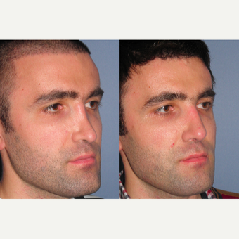 35-44 year old man treated with Revision Rhinoplasty after 3522799