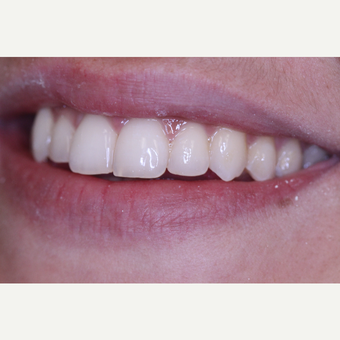 Left Lateral Incisor Chipped tooth treated with Dental Bonding after 3724912