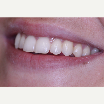 Left Lateral Incisor Chipped tooth treated with Dental Bonding before 3724912