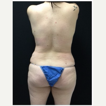 35-44 year old woman treated with Laser Liposuction to Upper Back & Bra Rolls after 3218539