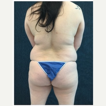 35-44 year old woman treated with Laser Liposuction to Upper Back & Bra Rolls before 3218539