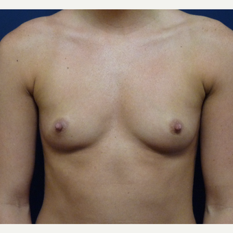 18-24 year old woman treated with Breast Augmentation before 3162349