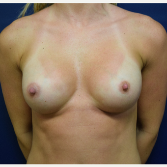 18-24 year old woman treated with Breast Augmentation after 3162349