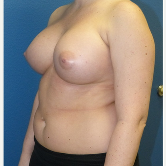 Breast Augmentation after 3807241