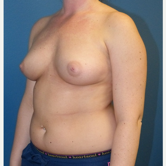 Breast Augmentation before 3807241