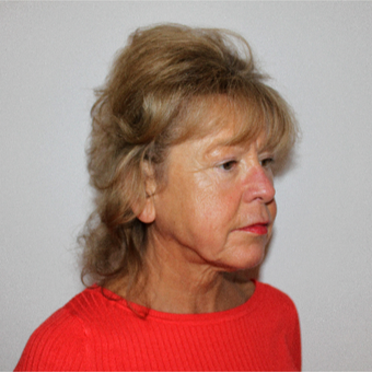 55-64 year old woman treated with Facelift before 3498801