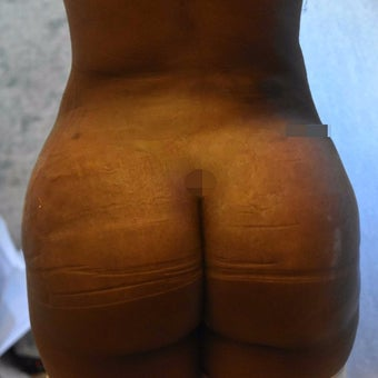 25-34 year old woman treated with Brazilian Butt Lift after 2596124