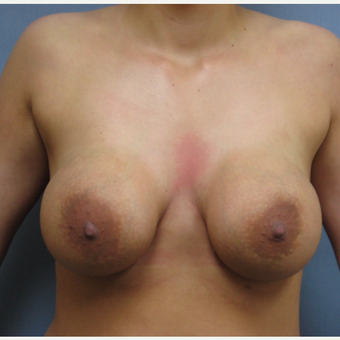 25-34 year old woman treated with Breast Implant Removal before 3300893