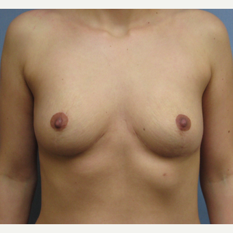 25-34 year old woman treated with Breast Implant Removal after 3300893