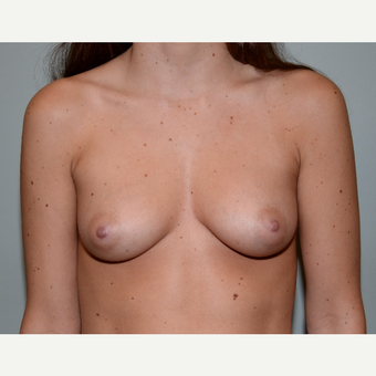 26 year old woman treated with Breast Augmentation before 3253022
