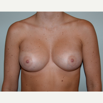 26 year old woman treated with Breast Augmentation after 3253022