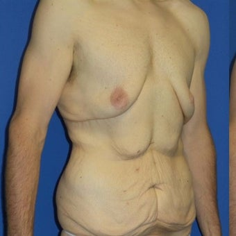 27 year old man treated with Body Lift before 2480269