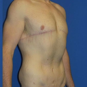 27 year old man treated with Body Lift after 2480269