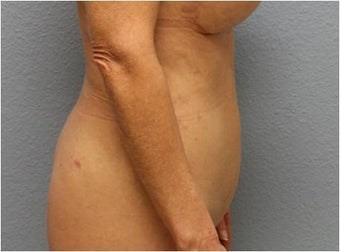 45-54 year old woman treated with Liposuction 3726502