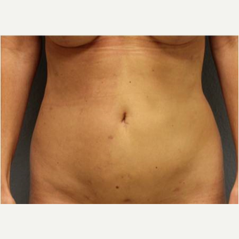 45-54 year old woman treated with Liposuction after 3726502
