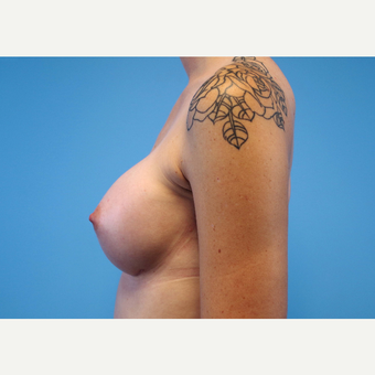 25-34 year old woman treated with Breast Implants after 3440954