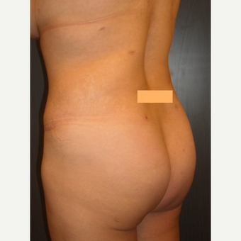 32 year old lady had fat transfer to the buttocks. after 3038491