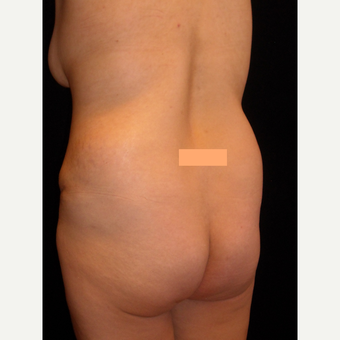 32 year old lady had fat transfer to the buttocks. before 3038491