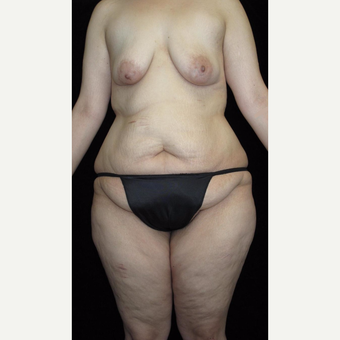 26 year old woman treated with Body Lift before 3251734