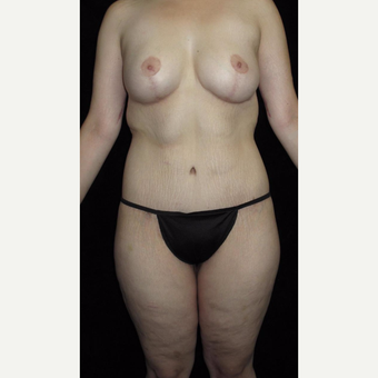 26 year old woman treated with Body Lift after 3251734