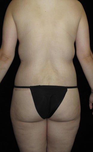 26 year old woman treated with Body Lift 3251734