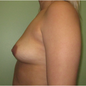 25-34 year old woman treated with Breast Augmentation before 3423962