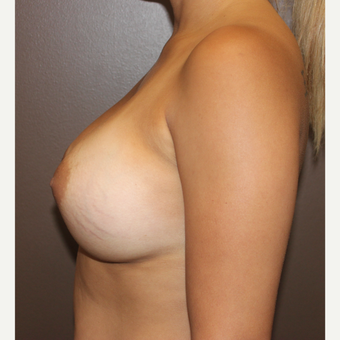 25-34 year old woman treated with Breast Augmentation after 3423962