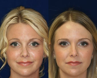 Non-surgical Rhinoplasty before 1224780