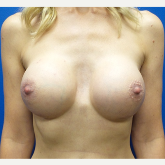 25-34 year old woman treated with Breast Augmentation after 3777538