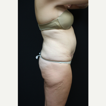 30 year old woman treated with Liposuction after 3089238