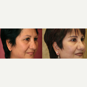 Eyelid surgery before and after pictures after 3424062