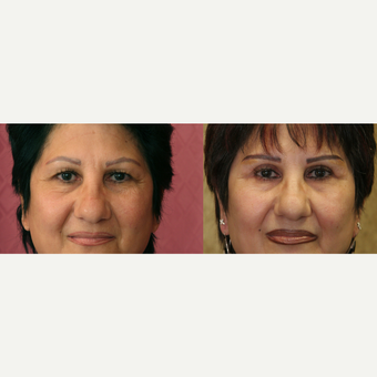 Eyelid surgery before and after pictures before 3424062