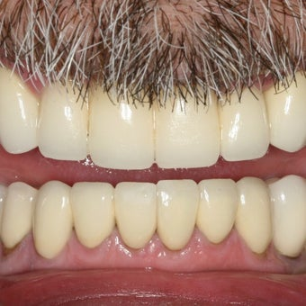 55-64 year old man treated with Dental Implants