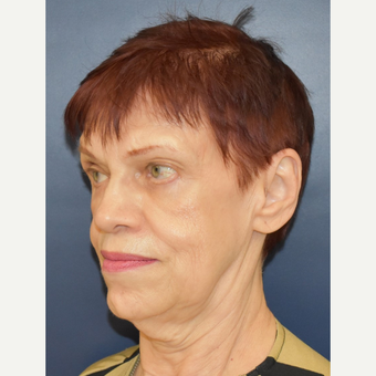 65-74 year old woman treated with MACS Facelift before 3449080