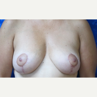 35-44 year old woman treated with Breast Lift after 3305819
