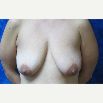 35-44 year old woman treated with Breast Lift before 3305819