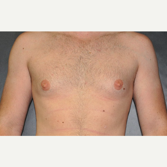 Bilateral Gynecomastia Correction before 2969844