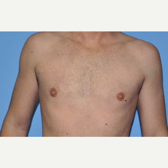 Bilateral Gynecomastia Correction after 2969844