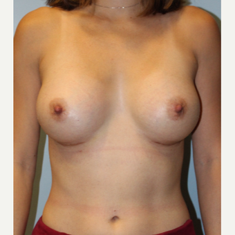 25-34 year old woman treated with Breast Augmentation after 3570442