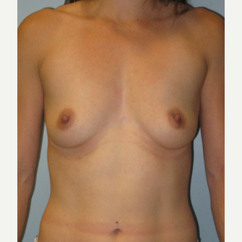 25-34 year old woman treated with Breast Augmentation before 3570442