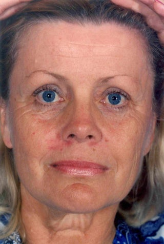 Facelift before 1047980