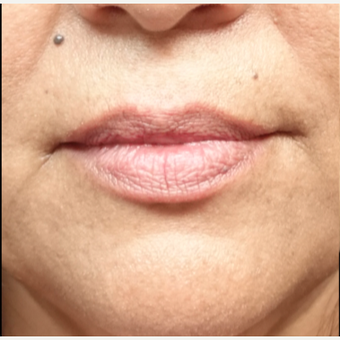 45-54 year old woman treated with Restylane Silk before 3280248